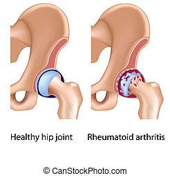 artritis, joint, rheumatoid, heup
