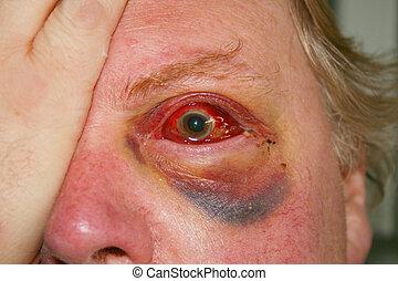 beschadigd, oog