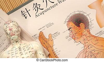 geneeskunde, acupunctuur, -, chinees, hd