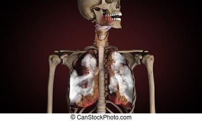 gezonde , draaien, roker, ziek, longen