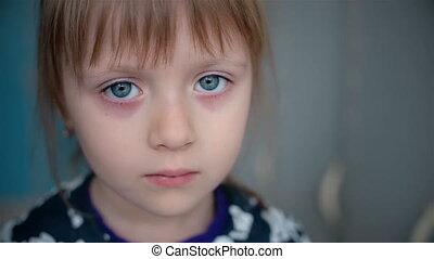 klein meisje, in het oog krijgen, verdrietige