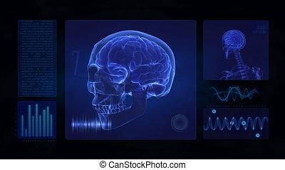 schedel, hersenen, display, medisch