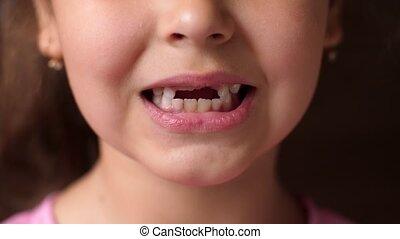 tandloos, meisje, opent, teeth., afsluiten, wortel, tooth., op, voorkant, haar, nee, optredens, baby, smile., holle weg, lippen