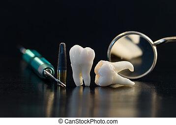 titanium, dentaal, implantaat