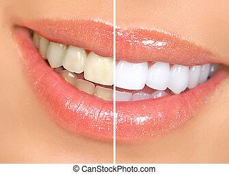 vrouw, teeth